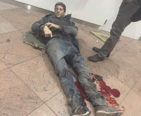 BRUSSELS AIRPORT CASUALTY 3