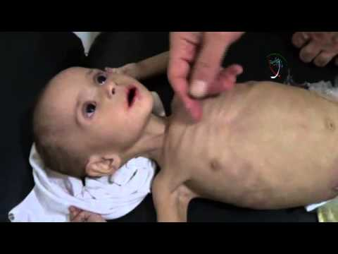 Syria Feature: Children Struggling to Survive Because of Food Shortages