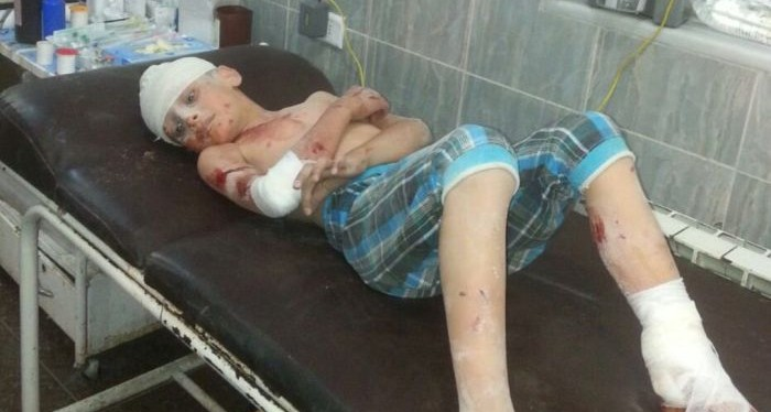 """Syria 1st-Hand: """"It is Hell"""" — An American Surgeon Inside Aleppo"""