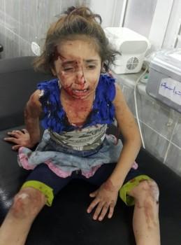 SYRIA CHILDREN NYT 2 08-16