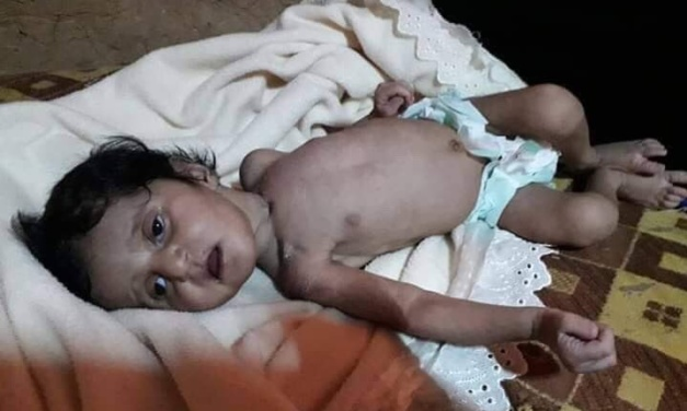 Syria Daily: Facing Starvation, Another 1,500 Leave Besieged Rukban Camp
